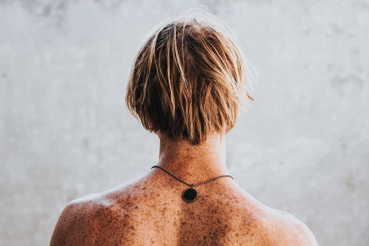 Skin Cancer Life Insurance